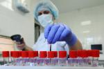 У Беларусі — 76 104 выпадкі захворвання на COVID-19. Выздаравелі 73 386 чалавек