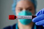 У Беларусі — 75 230 выпадкаў захворвання на COVID-19. Выздаравелі 73 098 чалавек