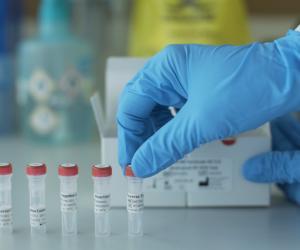 У Беларусі — 63 270 выпадкаў захворвання на COVID-19. Выздаравелі 50669 чалавек