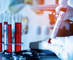 У Беларусі — 91 978 выпадкаў захворвання на COVID-19. Выздаравелі 82 670 чалавек