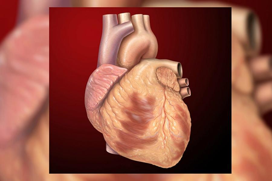 Что такое «тихий» инфаркт, и кому он угрожает
