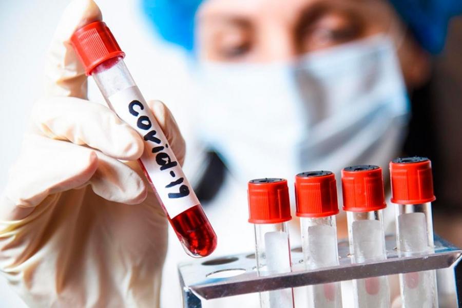 У Беларусі — 43 403 выпадкі захворвання на COVID-19. Выздаравелі 18776 чалавек